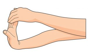 Stretcha handled